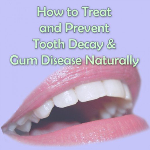 Natural ways to care for teeth. Prevent and reverse gum disease, periodontal disease and yellowing/aging teeth.