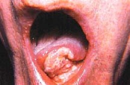 IF IT IS NOT LUNG CANCER IT IS TONGUE CANCER.CARBON OR NO CARBON,SMOKE OR NO SMOKE.
