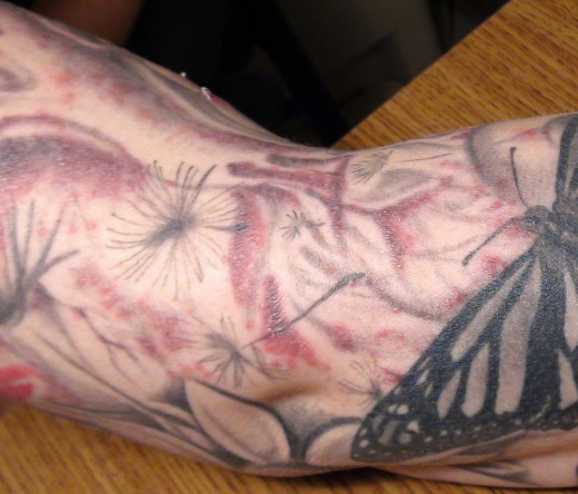The NTM Infection Caused by Contaminated Tattoo Ink