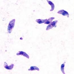 Toxoplasma parasite