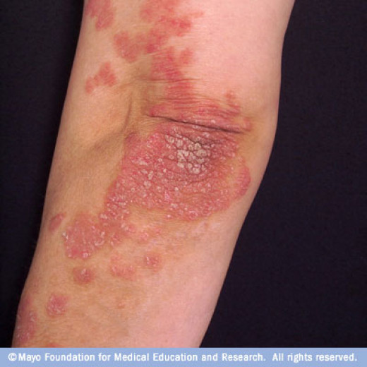 Look of psoriasis on the knee