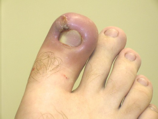 This toe has become infected after experiencing an ingrown toenail and shows acute inflammation.