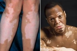 Products for Vitiligo