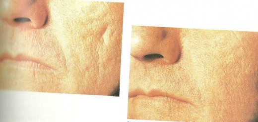 Pictures of Collagen Injections: Before and After