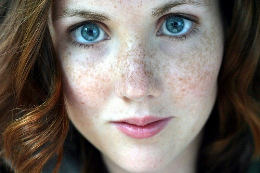 Who would want to take away her freckles? This woman is GORGEOUS!!