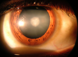 Magnified view of cataract