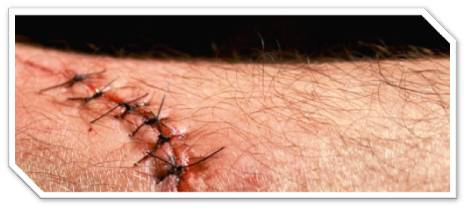 How to Remove Stitches | HubPages
