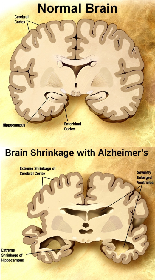 Alzheimer's Disease causes brain shrinkage and loss of memory