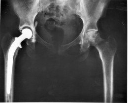 X-ray showing artificial right hip in place.