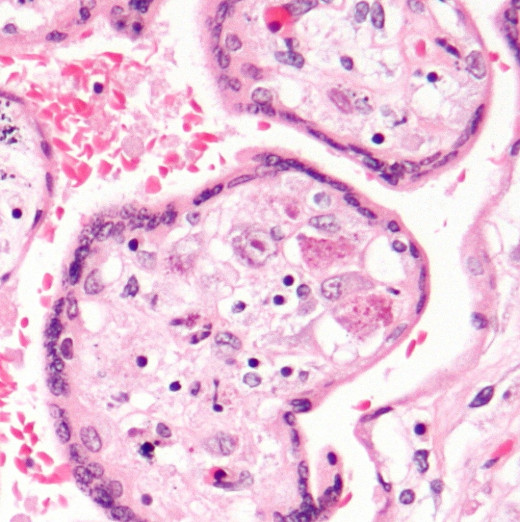 Placental cells infected with Cytomegalovirus.