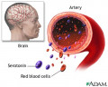Serotonin Boosting Methods