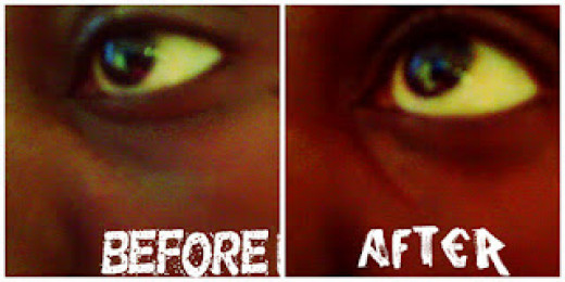 Before and after pictures: using natural remedies