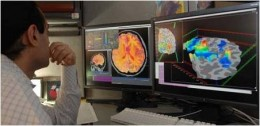 Comparing Brain Scans
