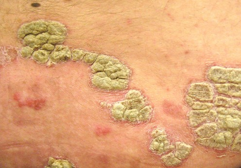 Psoriasis, Obesity, and Heart Disease