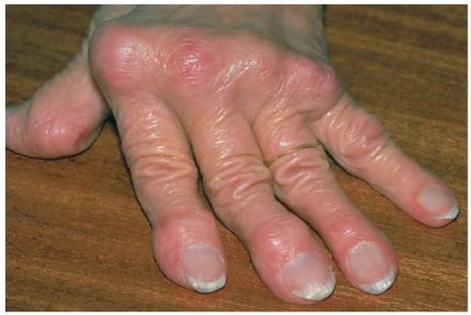 Psoriatic Arthritis is an aggressive and potentially destructive, inflammatory arthritis.