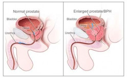 Prostate Cancer, a Silent Killer