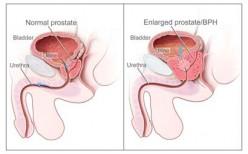 Prostate Cancer, a Silent Killer