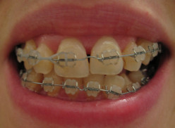 The Benefits Of Orthodontic Treatment