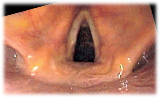 A functioning larynx (this person is breathing in and allowing air to pass freely through the vocal cords).