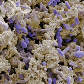 Bacteria shed from the intestine (some of which are colored purple here) make up much of human feces.
