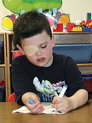 Occlusion Therapy involves patching the stronger eye.