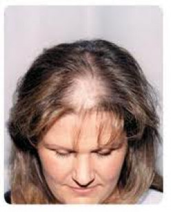 Top Home Remedies For Hair Loss In Women