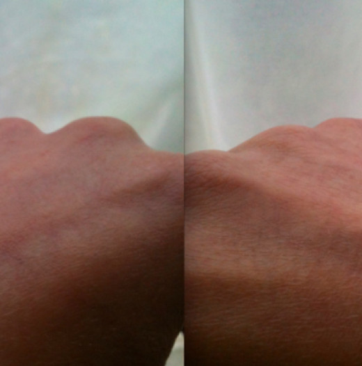 The hand on the left has Flash Balm applied, the hand on the right doesn't.  Photo © Redberry Sky, 2012.
