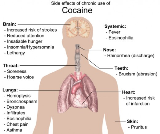 The effects on the body from cocaine use are severe and can be fatal.