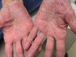 What You Need to Know About Psoriasis vs. Eczema