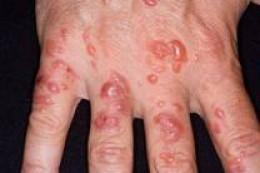 аллергия на кистях рук лечение