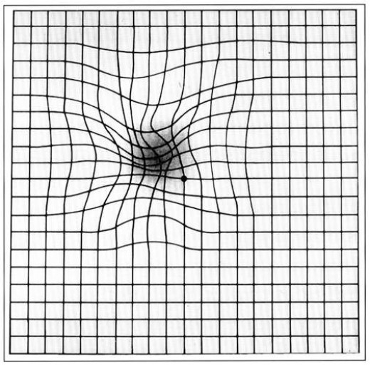 Amsler grid as it might appear to a person with macular degeneration