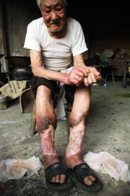 Jiang Hongcai, 81, looks at his rotten legs helplessly in Jinhua, east China's Zhejiang Province July 5, 2005. His legs began to rot after an anthrax and farcy infection due to the germ warfare by the invading Japanese during the World War II. Jiang