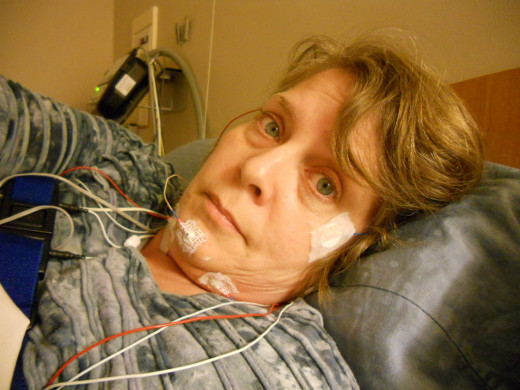 A sleep study test is used to diagnose obstructive sleep apnea.