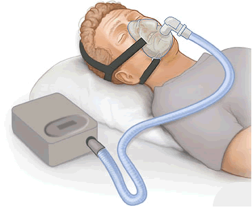 Air is delivered through the CPAP machine into a person's airways through a mask.