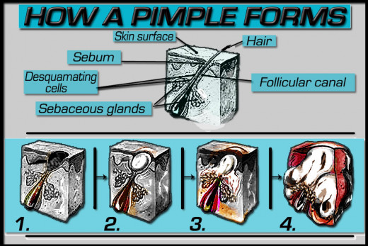 How a pimple forms, step by step.
