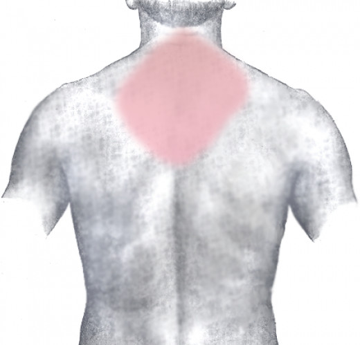 Do you have unexplained neck and back pain?