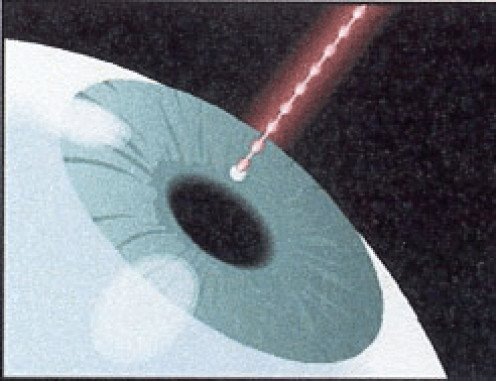 How My Doctor Cured My Glaucoma with Laser Iridotomy