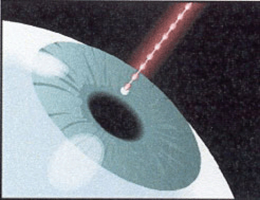 Laser Iridotomy is the process of making a small pinhole in the iris of the eye as a treatment for Glaucoma.