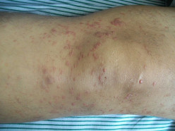 The Skin Lymphoma