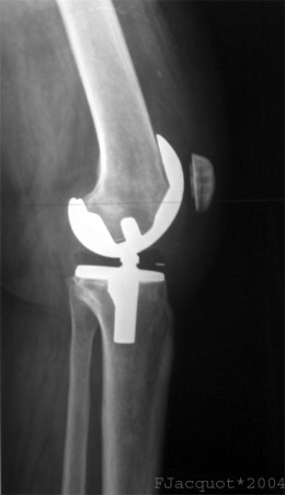Xray showing a total knee arthroplasty.