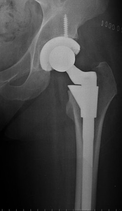 Benefits of Hip Replacement