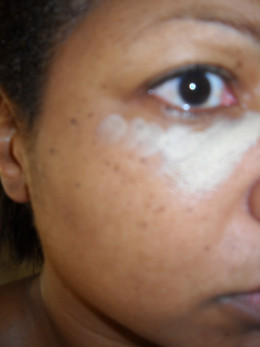 Concealing bags, discoloration