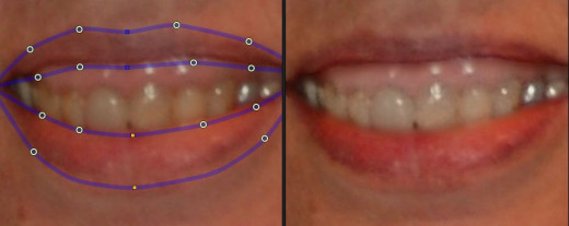 In this image PP11 treated the top gums as teeth and lightened them.