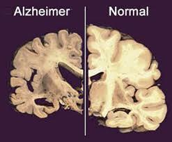 Shrinking of Brain in Alzheimer's Patient
