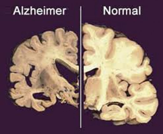 Shrinking of Brain in Alzheimer's Patient