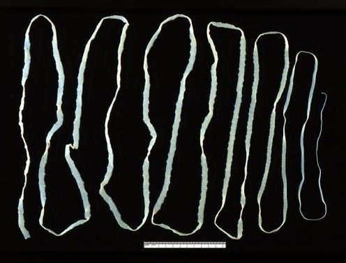 An Adult Tapeworm (Taenia).