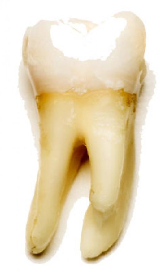 Gel Film Covering Tooth.