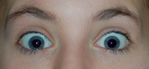 The fixed photo from www.fixredeyes.com.  Notice the blue tinge to the reflections in the center of the pupils.