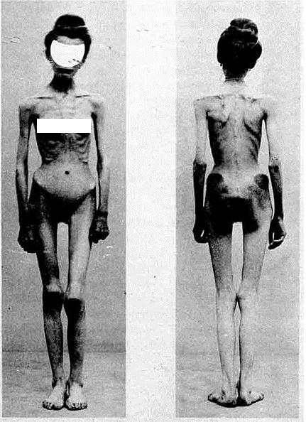 Anorexia in 1900