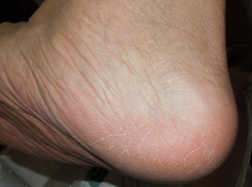 Take care of cracked skin on heel like this before it goes worse